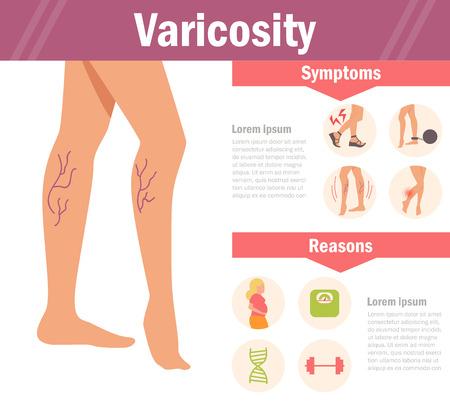 Varicosity. Vector. Cartoon.