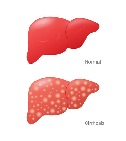diseased: Illustration of healthy and diseased Illustration