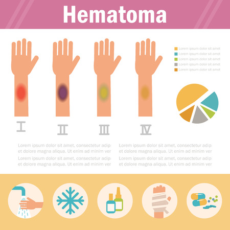bruised: Hematoma. Stages. Isolated Illustration