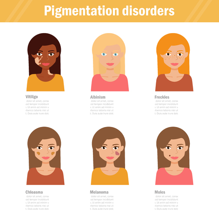 Pigmentation disorders. Isolated art Stock Vector - 76888081