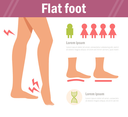 Flat foot. Vector. Cartoon. Isolated. Flat Illustration for websites brochures magazines Medicine Illustration