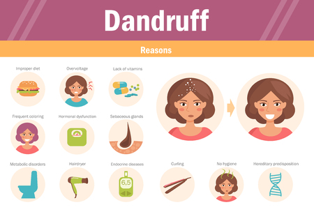 Reasons of dandruff.