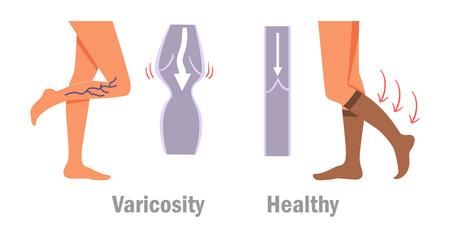 Beine mit Krampfadern-Symbol.