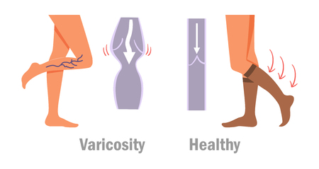 Legs with varicose veins icon.