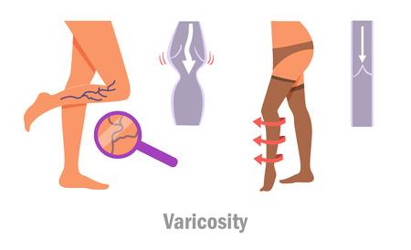 Varicosity. Legs. Vector. Cartoon.
