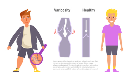 Varicosity graphic information with unhealthy and healthy man Illustration. Stock Illustratie
