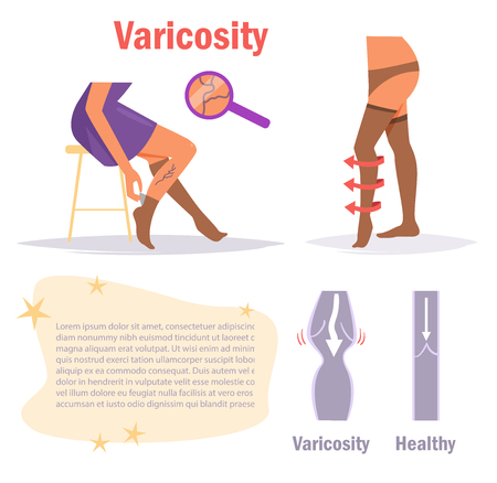Varicosity Legs. Vector.