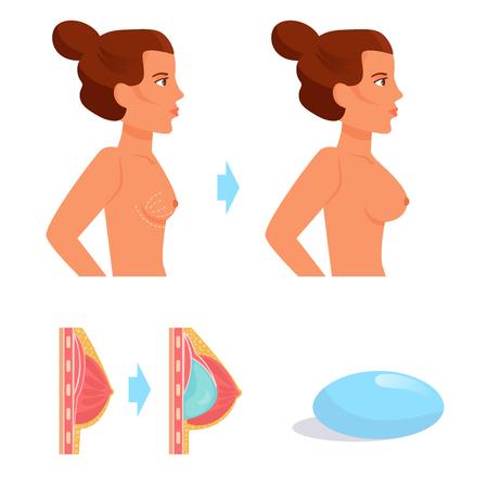 Plastic surgery Vector. Cartoon Illustration