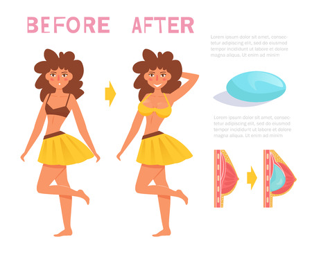 Before and after. Breast surgery. Implants Vector. Cartoon. Isolated art on white background.