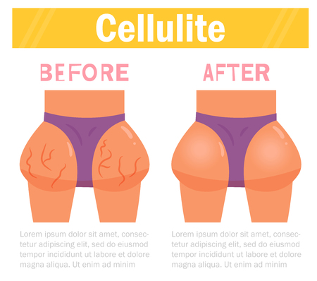 Cellulite. Before and after Vector. Cartoon. Isolated art Stock Photo