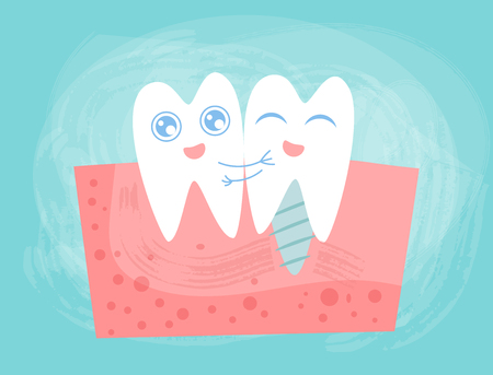 Tooth and implant Vector. Cartoon. Isolated art