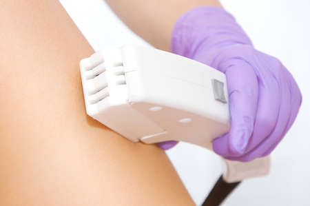 hair removal: Laser hair removal