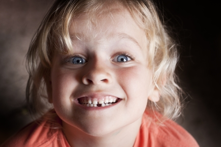 A girl just lost her first milk tooth Stock Photo
