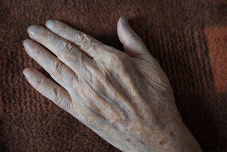 sickly: The withered hand of a patient lying on a background of old woolen blanket. Close-up.