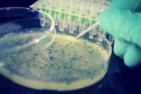 Bacterial colony picking for DNA cloning Stock Photo - 17766146