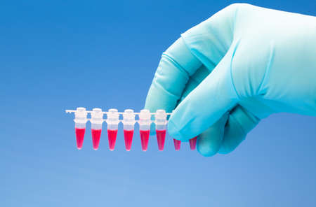 fingerprinting: Microtubes with biological samples in criminalistic laboratory for DNA analysis in the hand Stock Photo
