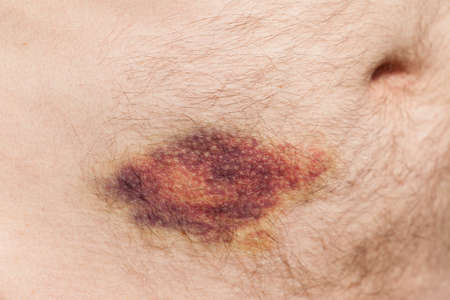 Bruising to stomach after receiving blood thinning injection