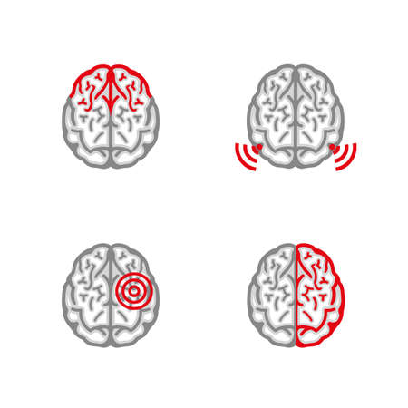 head pain: Beautiful vector illustration of head pain concept. Abstract symbol of brain disease. Useful for postcard, flyer, leaflet, brochure, print, book, ad and poster graphic design. Illustration