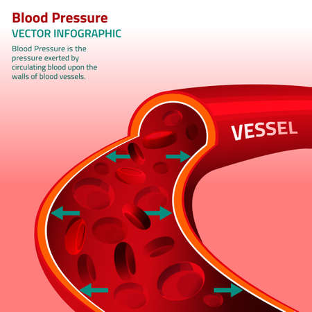 Beautiful vector illustration of blood pressure infographic. Abstract medicine concept. Useful for poster, indographics, placard, leaflet, brochure, print, book and advertisement graphic design. 版權商用圖片 - 51897311