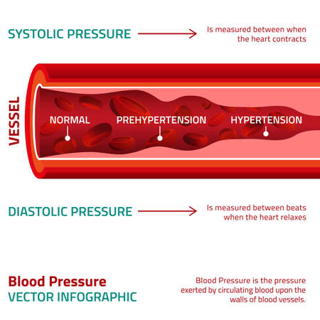 Beautiful vector illustration of blood pressure infographic. Abstract medicine concept. Useful for poster, indographics, placard, leaflet, brochure, print, book and advertisement graphic design. Imagens - 51897314
