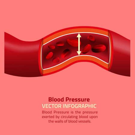ilustración vectorial hermosa de infografía de la presión arterial. Resumen concepto de la medicina. Útil para el cartel, indographics, cartel, folleto, folleto, la impresión, el libro y el diseño gráfico publicitario. Ilustración de vector