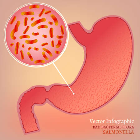 chronic gastritis: Beautiful vector illustration of medical stomach scheme with bad bacterial flora. Editable abstract image in pink and red colors useful for a poster, logo, placard, sign, ad and web banner design.