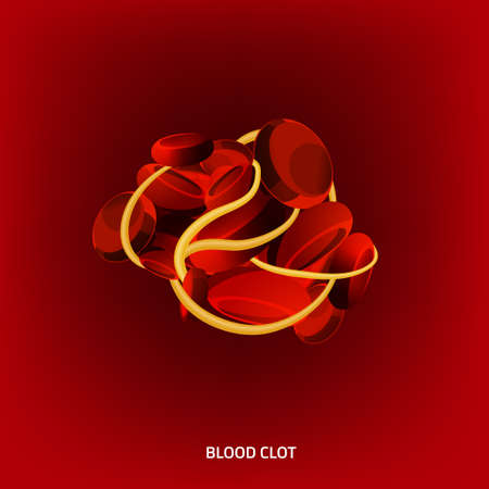 stenosis: illustration of a blood clot. Abstract medicine concept. Useful for poster, indographics, placard, leaflet, brochure, print, book and advertisement graphic design. Illustration