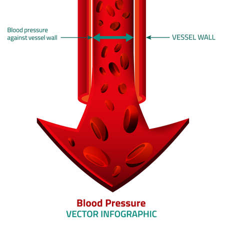 stenosis: illustration of blood pressure infographic. Abstract medicine concept. Useful for poster, indographics, placard, leaflet, brochure, print, book and advertisement graphic design. Illustration