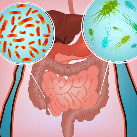 vermin: illustration of bacterial flora in human internal organs. Abstract medicine concept. Useful for poster, indographics, placard, leaflet, brochure, print, book and ad graphic design. Illustration