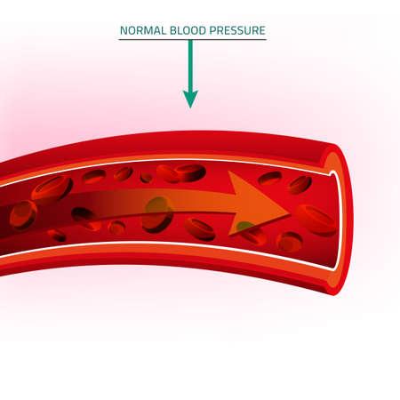 illustratie van de bloeddruk infographic. Abstract concept van de geneeskunde. Nuttig voor poster, indographics, aanplakbiljet, folder, brochure, print, boek en reclame grafisch ontwerp. Vector Illustratie