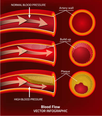 blood flow: Beautiful vector illustration of blood pressure infographic. Abstract medicine concept. Useful for poster, indographics, placard, leaflet, brochure, print, book and advertisement graphic design.