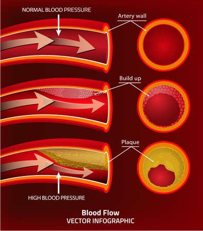 red blood cell: ilustración vectorial hermosa de infografía de la presión arterial. Resumen concepto de la medicina. Útil para el cartel, indographics, cartel, folleto, folleto, la impresión, el libro y el diseño gráfico publicitario.