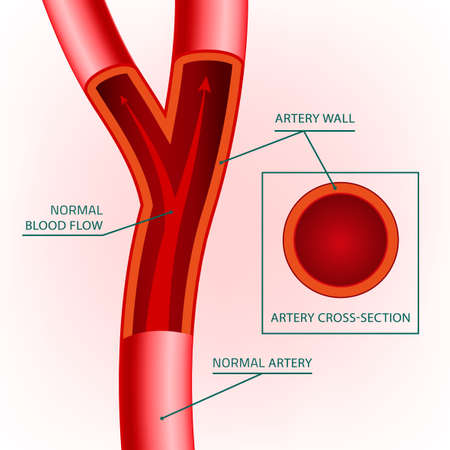 stenosis: Beautiful vector illustration of blood flow infographic. Abstract medicine concept. Useful for poster, indographics, placard, leaflet, brochure, print, book and advertisement graphic design. Illustration