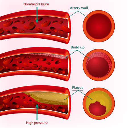blood flow: Beautiful  illustration of blood pressure info graphic. Abstract medicine concept. Useful for poster, indographics, placard, leaflet, brochure, print, book and advertisement graphic design.