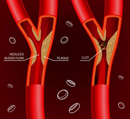 stenosis: Beautiful illustration of blood flow infographic. Abstract medicine concept. Useful for poster, indographics, placard, leaflet, brochure, print, book and advertisement graphic design.