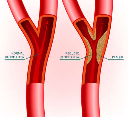 illustration of blood flow infographic. Abstract medicine concept. Useful for poster, indographics, placard, leaflet, brochure, print, book and advertisement graphic design. Ilustração