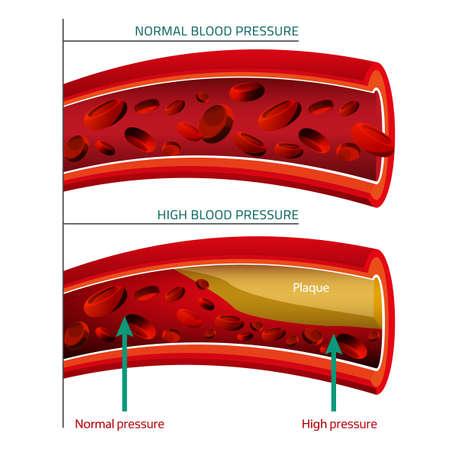 illustrazione di infografica pressione sanguigna. Concetto astratto medicina. Utile per poster, indographics, cartello, depliant, brochure, stampa, libri e pubblicità graphic design.