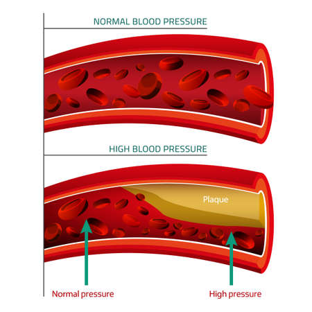 illustration of blood pressure infographic. Abstract medicine concept. Useful for poster, indographics, placard, leaflet, brochure, print, book and advertisement graphic design. Vectores