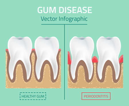 bacterial plaque: Teeth infographic. Gum disease stages. Editable illustration in modern style. Medical concept in natural colors on a light green background. Keep your teeth healthy