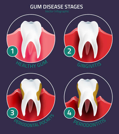 Teeth infographic. Gum disease stages. Editable illustration in modern style. Medical concept in red, green and white colors on a darl violet background. Keep your teeth healthy