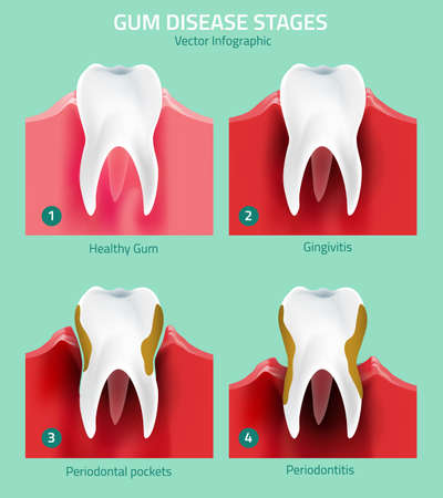 bacterial plaque: Teeth infographic. Gum disease stages. Editable vector illustration in modern style. Medical concept in natural colors on a light green background. Keep your teeth healthy