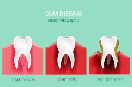Tanden infographic. Tandvleesaandoeningen fasen. Bewerkbare vector illustratie in moderne stijl. Medische begrip in de natuurlijke kleuren op een lichte groene achtergrond. Houd uw tanden gezond