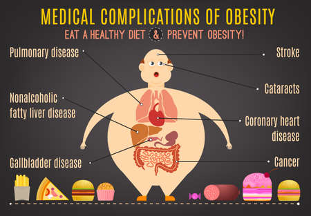 complications: Medical complications of obesity. Editable vector illustration in pastel colors on a dark gray background. Statistic information. Medical poster, leaflet or other landscape layout template.