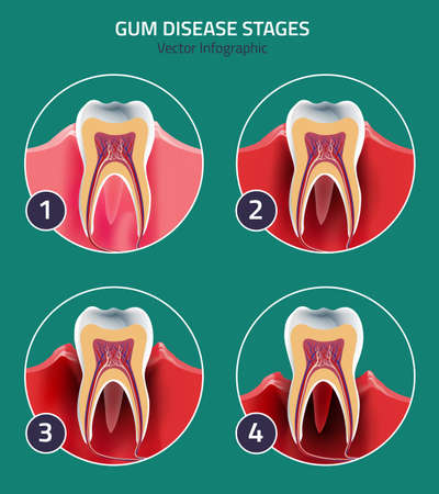 Gum disease stage in modern style. Medical concept in natural colors on a light green background. Keep your teeth healthy