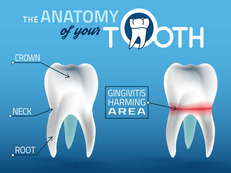 Human tooth dental infographic. Editable  illustration. Medical image in white, pink and dark blue colors on a light blue background useful for poster, leaflet or brochure graphic design.