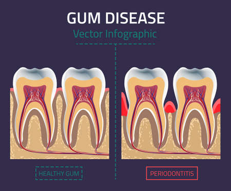 bacterial plaque: Teeth infographic. Gum disease chart. Illustration
