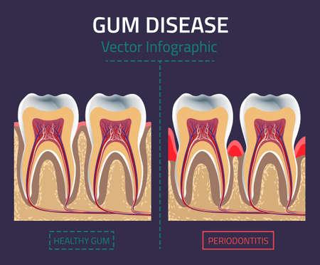Zähne Infografik. Gum Krankheit Diagramm.