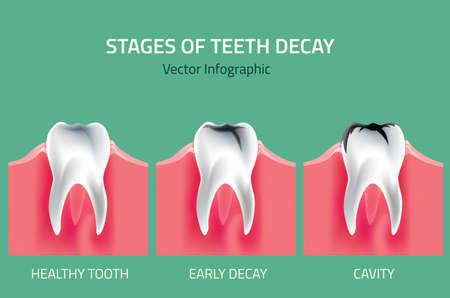 inflamed: Teeth disease infographic. Gum disease stages.