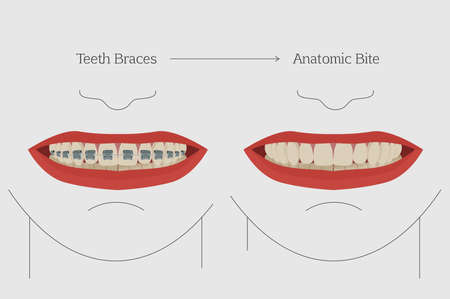 corrections: Anatomic bite concept. Medical educational image. Keep your teeth clean and healthy. Smiling female mouth with teeth and braces. Vector illustration. Orthodontic infographics