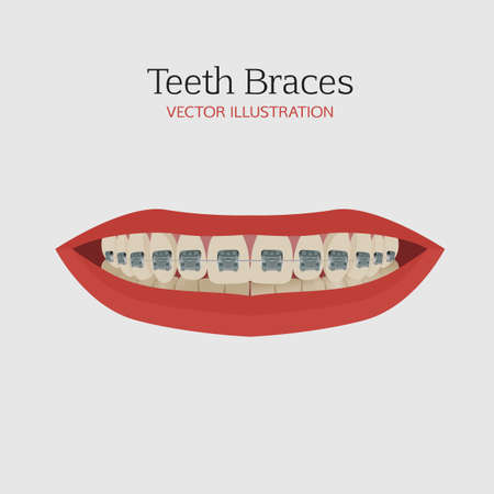 anatomic: Anatomic bite concept. Medical educational image. Keep your teeth clean and healthy. Smiling female mouth with teeth and braces. Vector illustration.